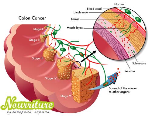 Рак толстой кишки (ободочной и прямой)