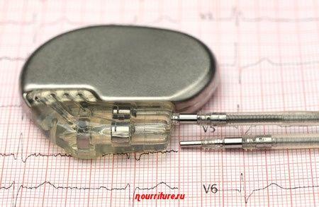 Электрические приборы и больное сердце: как обращаться с кардиостимулятором?