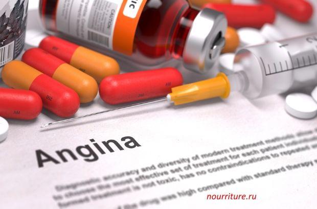 Ангина (острый тонзиллит)