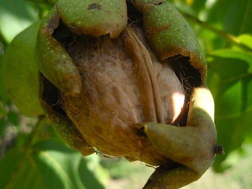 Настой листьев грецкого ореха для полосканий ротовой полости