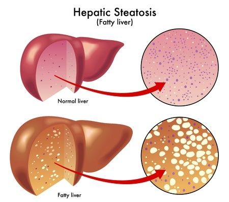 Гепатозы