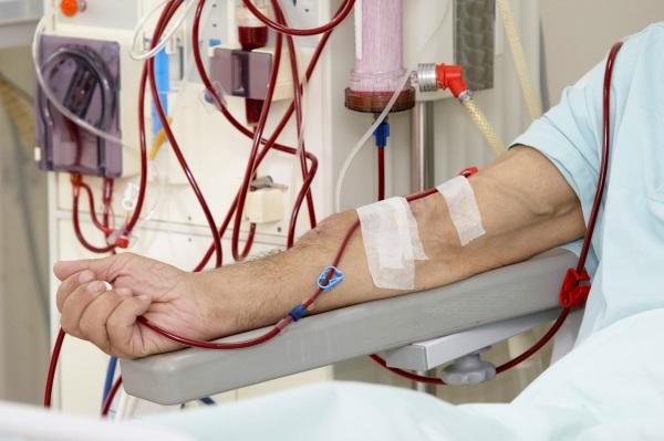 Воспалительные заболевания почек медицинский термин