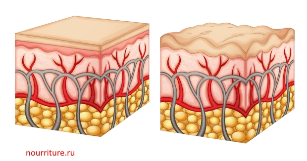 как похудеть при запорах Диета при запорах   Трансформация тела. Как похудеть или.