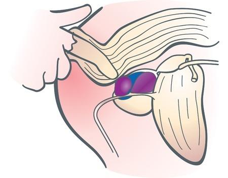 Причины и лечение боли в прямой кишке