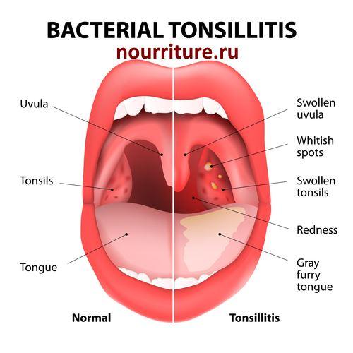 аденоиды и запах изо рта чем лечить